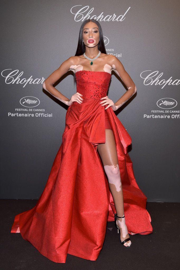 Winnie Harlow lors du diner Chopard pour le 70ème Festival International du Film de Cannes le 19 mai 2017.