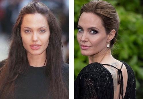 Angelina Jolie photos avant/après la Bichectomie