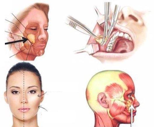 Explication d'une Bichectomie