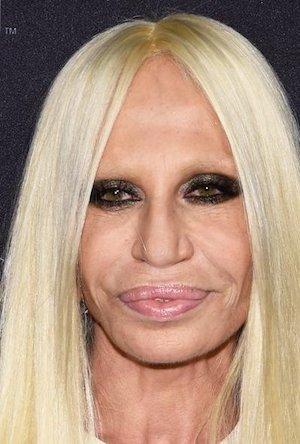 Donatella Versace avant/après