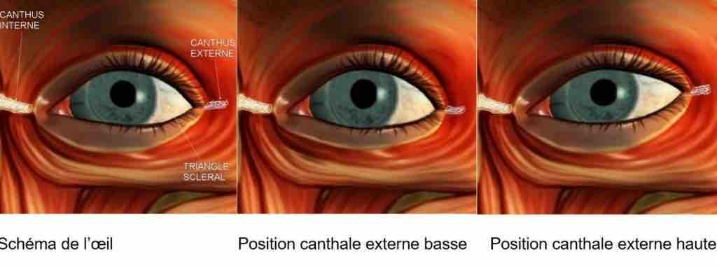 Canthopexie Chirurgie Foxy Eyes déroulé