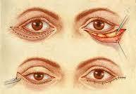Chirurgie pour effacer les poches des yeux