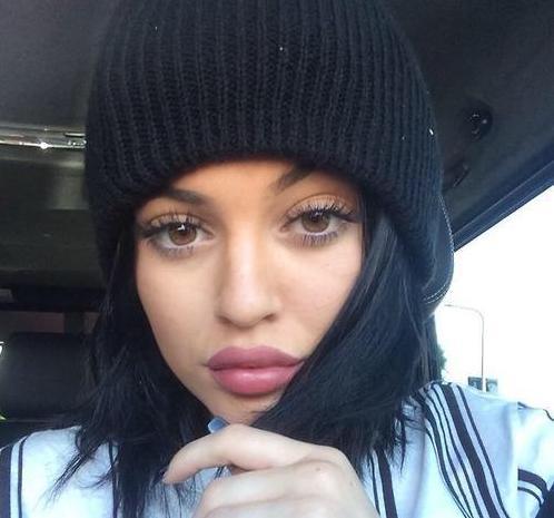 Lèvres Kylie Jenner Après Injections