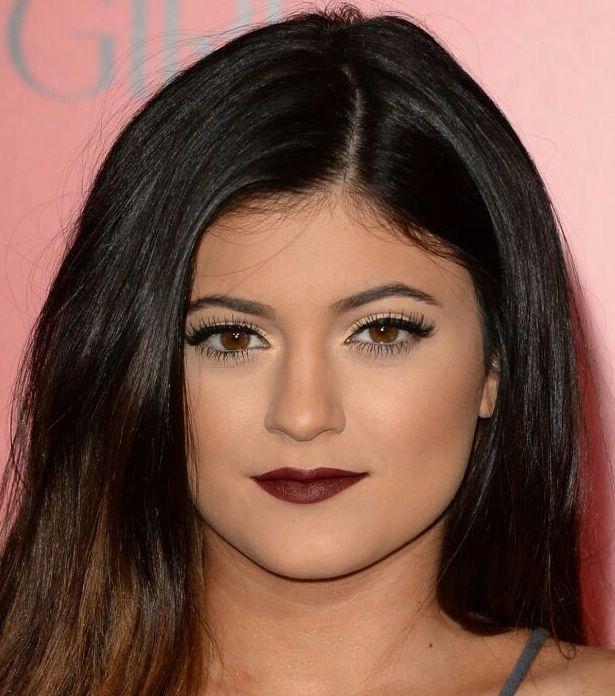 Lèvres Kylie Jenner Avant Injections