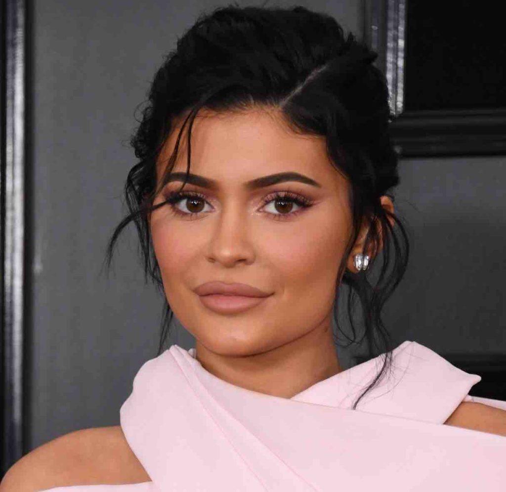 Pommettes Kylie Jenner Après Injections