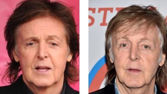 Paul McCartney Avant/Après Chirurgie Paupières