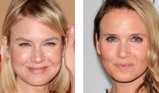 Renée Zellweger Avant/Après Chirurgie Paupières