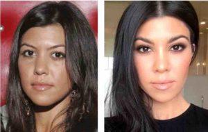Chirurgie Kourtney Kardashian