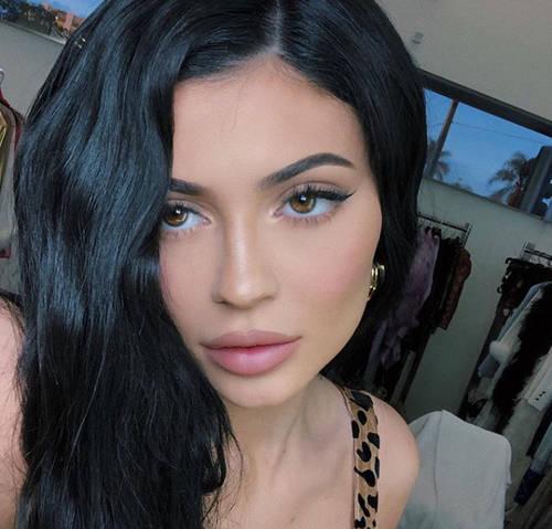 Kylie Jenner Après Chirurgie Mâchoire
